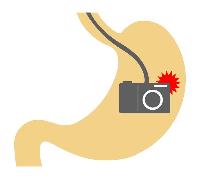 胃カメラ検査のイメージイラスト